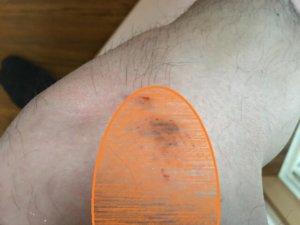 犬に噛まれた患部範囲の写真