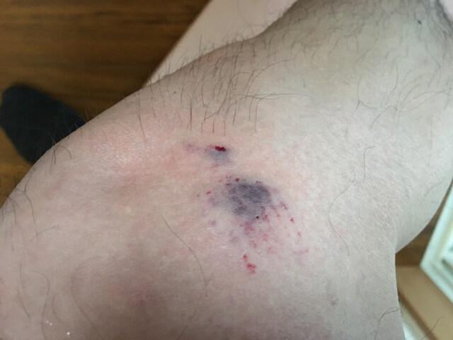 犬に噛まれた患部の写真