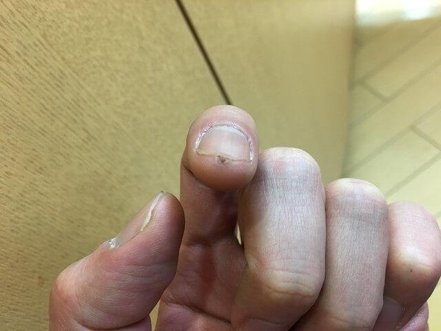 2月21日指のイボの写真