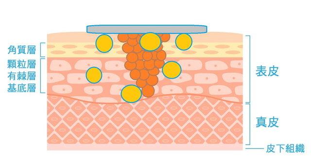 ダクトテープに反応した抗体のイラスト
