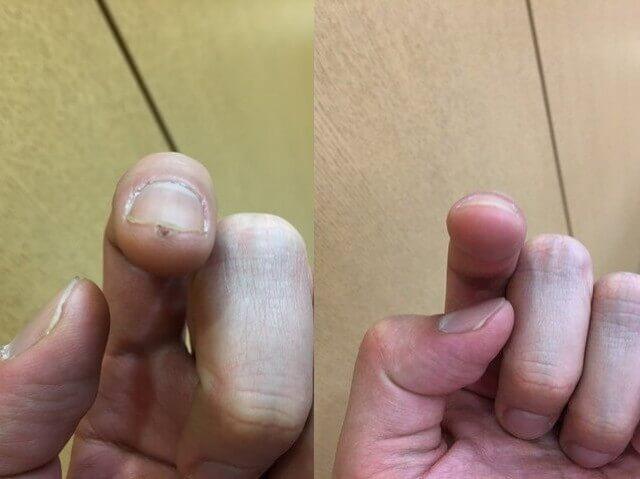 治った指の先のイボの写真