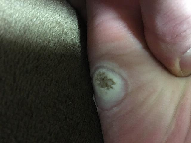 2月22日足の裏いぼの写真