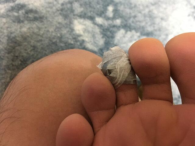 2月22日足の指のダクトテープの写真