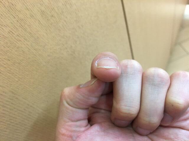 5月10日指のイボの写真