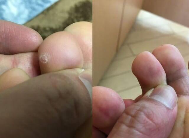 治った足の指のイボの写真
