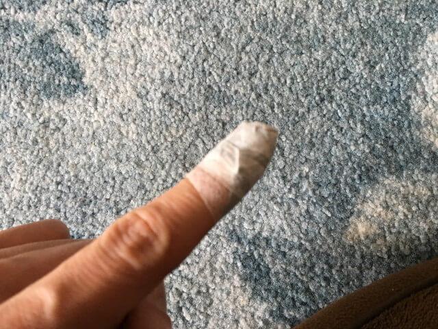 2月23日指のダクトテープの写真