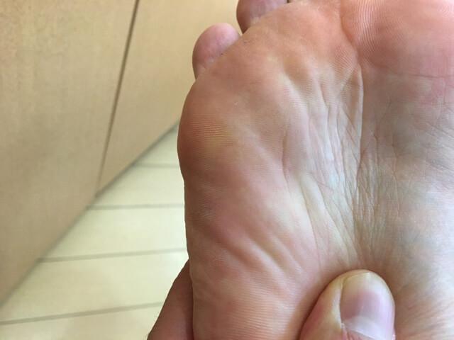 6月26日足の裏のいぼ治った写真