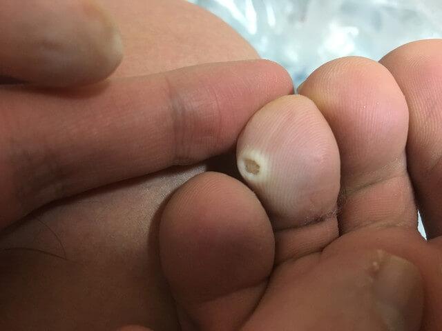 2月27日足の指のイボの写真