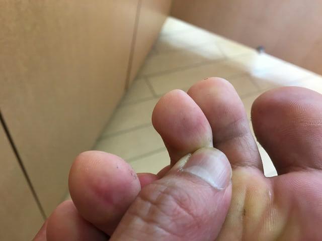 6月26日足の指のイボが治った写真