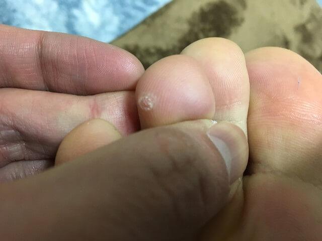 2月21日足の指のイボの写真