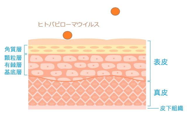 皮膚バリアで弾かれるヒトパピローマウイルスのイラスト
