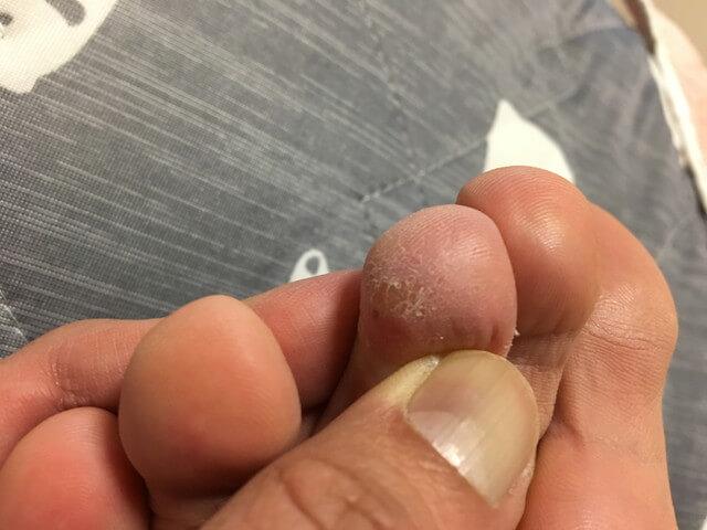 5月15日足の指のイボの写真