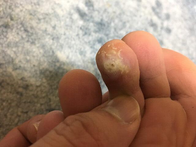 4月11日足の指のイボの写真
