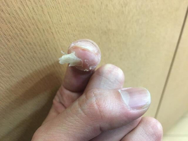 3月28日指のイボの写真