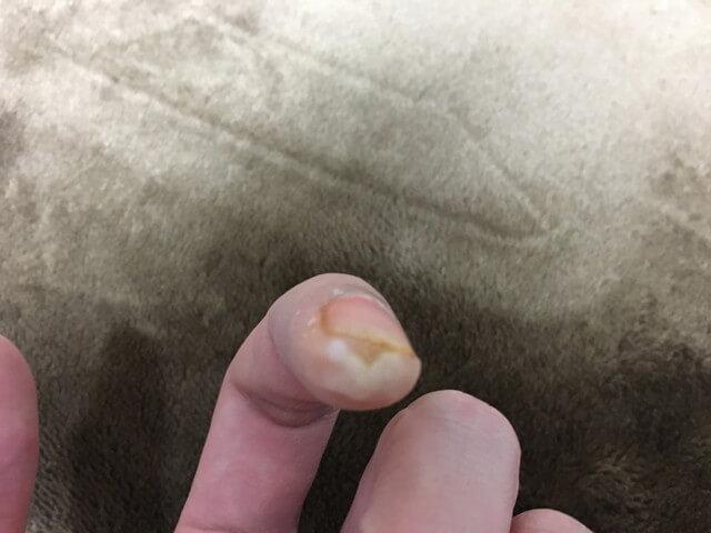 3月10日指のイボの写真